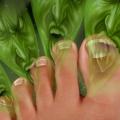 Який засіб допоможе від запаху ніг