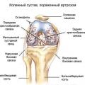 Остеофіти колінного суглоба: як лікувати і що це таке