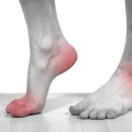 Після пробудження вранці при настанні болять ступні ніг