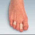 Замучили сухі мозолі на пальцях ніг: причини і лікування
